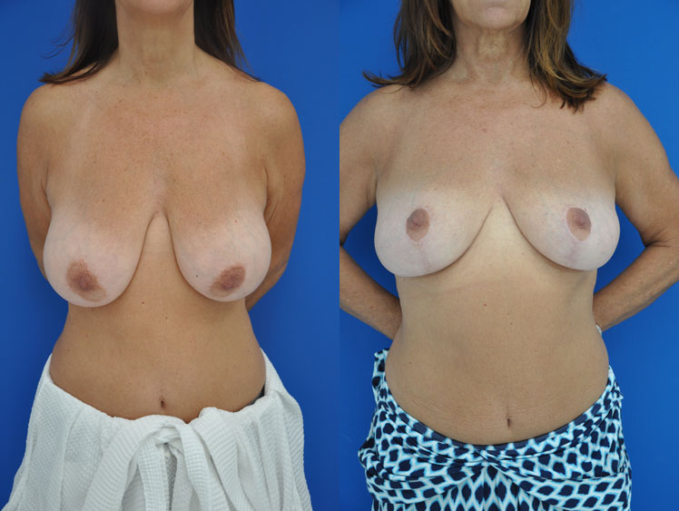 A before and after of an actual breast reduction patient.